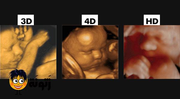 السونار 3d والسونار 4d للحامل